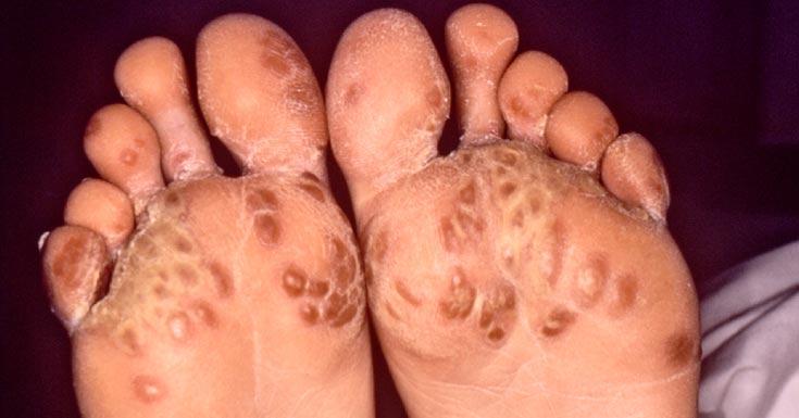 chlamydia-arthritis